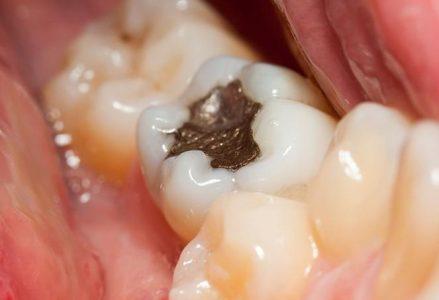 Ali se tudi vi redno zastrupljate?; 2.del (nujno branje za vse s plombami v zobeh)